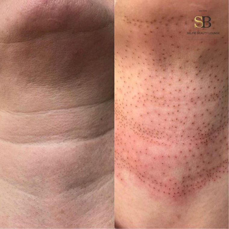 Plasma Fibroblast Skin Tightening Training Selfie Beauty